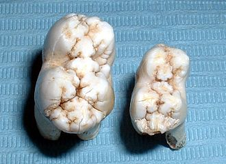Molar (tooth) - Pig tooth