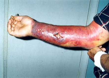 Skin lesion from anthrax Skin reaction to anthrax.jpg