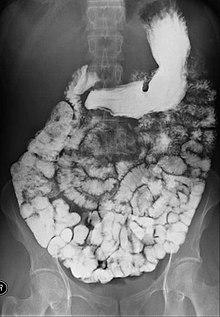 small bowel follow through