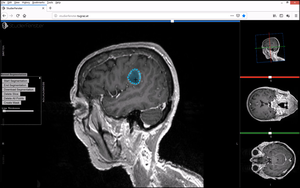 Studierfenster Brain Tumor Segmentation