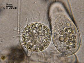 Ein Sauginfusor aus dem Süßwasser (links) fängt einen größeren Einzeller (Colpidium sp.; rechts) (Mikroskopaufnahme)