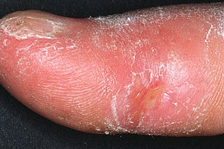 Systemic scleroderma scleroderma that is characterized by fibrosis (or hardening) of the skin and major organs, as well as vascular alterations, and autoantibodies