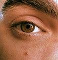 Treche's eye.JPG