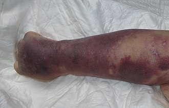 Right upper limb with purpura caused by thrombocytopenia in person with septic shock Trombocitopenia 01.JPG