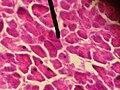 Acinar cells.JPG