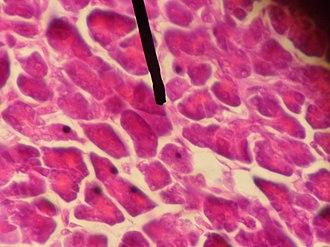 Acinus - human acinar cells