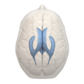 Areas of 3rd ventricle - 05.png