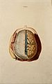Brain; dissection showing the top of the brain, with the dur Wellcome V0008398.jpg