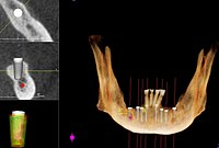 200px CT Scan for Dental Implants Dental Implants All on 4™ Dental Implants
