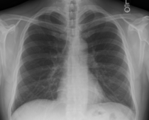 Chest Xray PA 3-8-2010.png