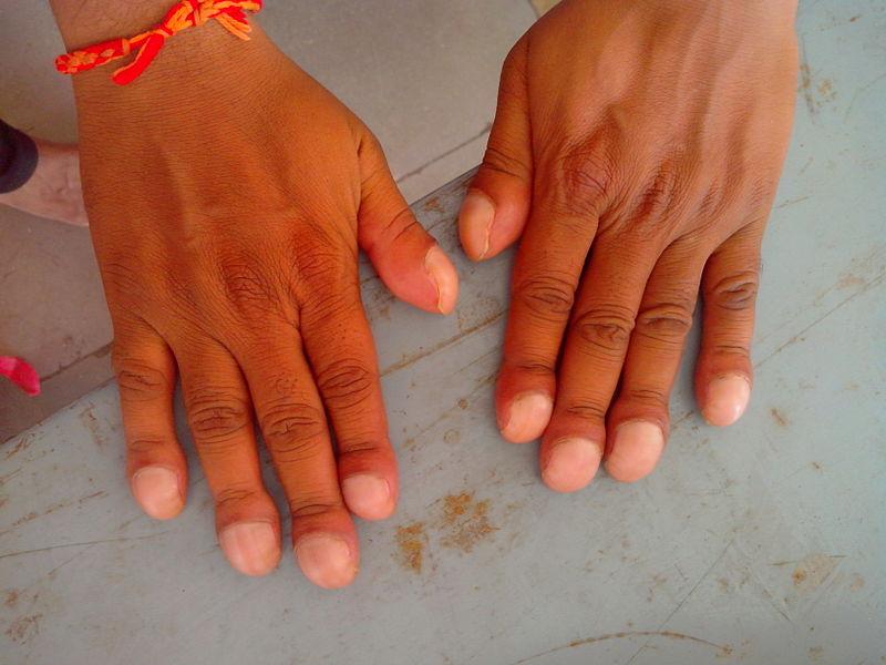 File:Clubbing of fingers.jpg