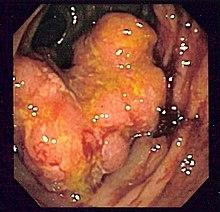 Cancro del colon sigma in soggetto con la malattia di Crohn