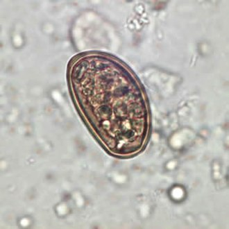 Dicrocoelium dendriticum - Dicrocoelium dendriticum egg in an unstained stool wet mount slide