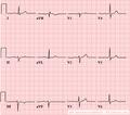 De-LAHB (CardioNetworks ECGpedia).png