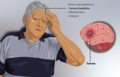 Depiction of a man with a tumour in his brain.png