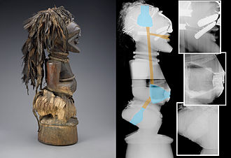 Indianapolis Museum of Art - Radiographic image of an African Songye power figure
