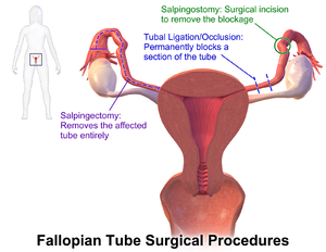 Fallopian Tube Surgical Procedures