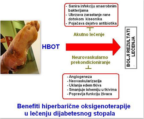 HBOT u terapiji dijabetesnog stopala.jpg