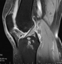 cartilago rodilla desgastada sintomas de diabetes