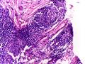 Leprosy - Tuberculoid (TT) - 5.jpg
