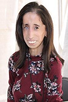 リジー ベラスケス 病気 「世界一醜い女性」と言われたリジーさん