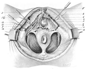 Dorsal nerve of the clitoris - Image: Mc Kay 1909 4