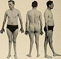 Nervous and mental diseases (1911) (14591720128).jpg