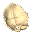Occipital bone close-up suerperior3.png