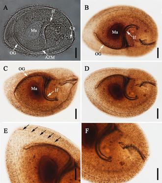 Armophorea - Sicuophora multigranularis (Clevelandellida)