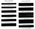 Pulse tracings. Sphygmograph. Wellcome M0019000.jpg