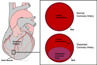 Spontaneous coronary artery dissection uncommon cause of heart attacks mostly affecting younger, healthy women