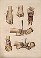 Six diagrams illustrating cross-sections through a foot. Col Wellcome V0016841ER.jpg
