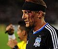 Steven Lenhart bleeding 2013.JPG