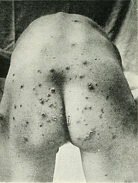 The British journal of dermatology (1888) (14584388810).jpg