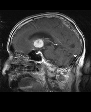 Primary CNS Lymphoma, MRI, T1 Saggital
