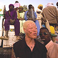 Albino man from niger.jpg