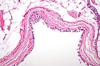 Bronchogenic cyst high mag.jpg
