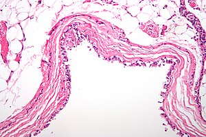Histological micrographic image of a bronchogenic cyst of the mediastinum. Sample has been stained with hematoxylin and eosin to improve contrast.