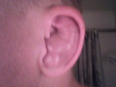 Cauliflower Ear Left.jpg