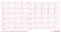 De-Sinusbradycardia (CardioNetworks ECGpedia).png