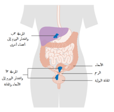 A diagram of stage IV endometrial cancer