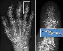 proces de alăptare pentru durere în articulația genunchiului