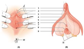 La circoncision du clitoris est satisfaite