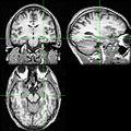 Hippocampus-mri.jpg