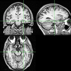 Eating disorders and memory - An MRI scan with the hippocampus indicated in a coronal, lateral and horizontal view.