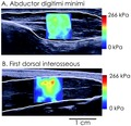Killian Bouillard, Nordez A, Hug F (2011) supersonic shear imaging of hand muscle stiffness.tif