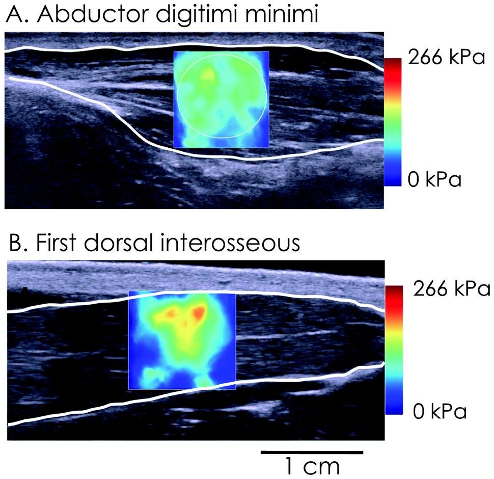 Killian Bouillard, Nordez A, Hug F (2011) supersonic shear imaging of hand muscle stiffness