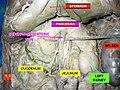 Pancreas in situ.jpg