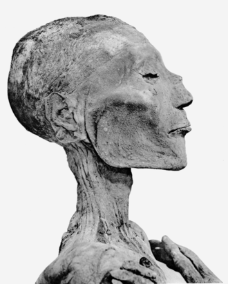 Ramesses V - Ramesses V's mummified head.