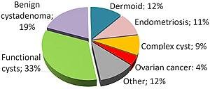 Ovarian Cyst Wikipedia